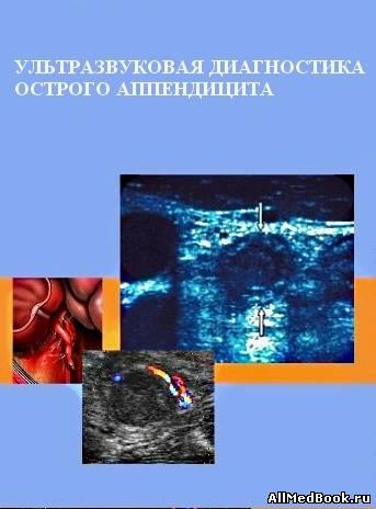 ультразвуковая диагностика книги скачать